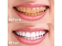 Teeth capped
