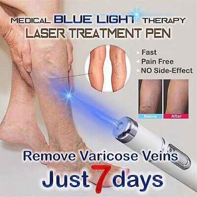 Blue Light Therapy Laser Pen Face Massager Acne Scar Wrinkle Removal Treatment S