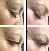 Eyelid skin tightening! No botox or fillers!