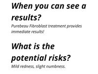 Fibroblast Skin tightening treatment. Get rid of wrinkles, crows feet and stretch marks