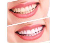 ADVANCED Teeth Whitening Home Kit Tooth Whitener Strog Laser Dental Gel Bleach LED light
