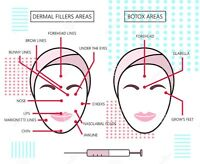 Models Needed for Botox and Dermal Fillers! Save 50% Off!