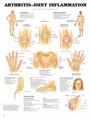 Arthritis - Joint Inflammation  Anatomy Poster Anatomical Chart Company
