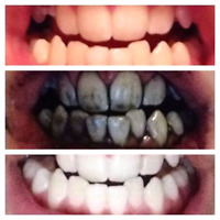 BOGO OFFER! 100% NATURAL ACTIVATED CHARCOAL TEETH WHITENER