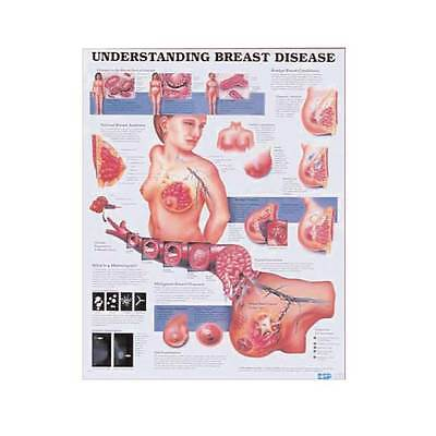 Understanding Breast Disease Cancer Anatomy Poster Anatomical Chart Company