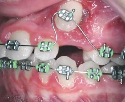 10pcs Dental Orthodontic Ortho Cu Niti Copper Nickel Titanium Arch Wires Damon