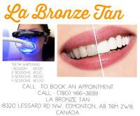 Dental Grade Teeth-Whitening Service $65/session