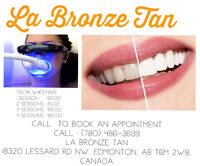 Dental Grade Teeth-Whitening Service $65/session