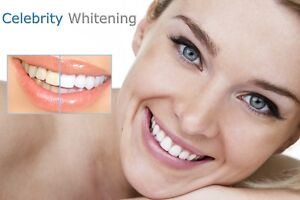 Teeth Whitening Business for Sale - High Profit - Training Inc Brisbane Region Preview