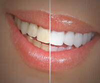 Teeth Whitening Special - Smile With Confidence