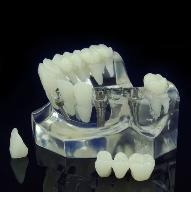 DENTAL CROWN AND BRIDGE IMPLANT SUPPORTED MODELS PLUS BRAND