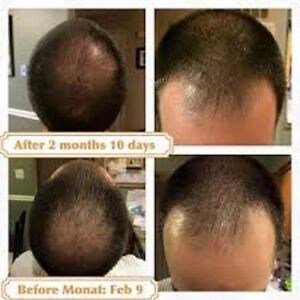 St John's Hair Trouble? We Got The Solutions That Work !!!! St. John's Newfoundland image 4