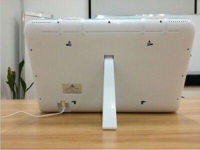 Dental X Ray Film Viewer Led Illuminator Wall Desk Mounting View Box Luna