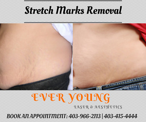 Stretch Marks Treatment (Ladies only) #EverYoung #EXTRA 30% OFF