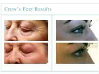 Fibroblast plasma skin tightening treatment