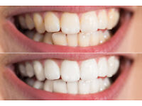 TEETH WHITENING ***OFFER*** £50 - NORTH LONDON
