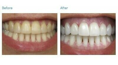 VERY STRONG Tooth Teeth Whitening Gel FAST WHITE 1x10ml - 10 Full Mouth Apps