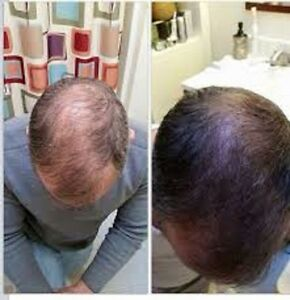 St John's Hair Trouble? We Got The Solutions That Work !!!! St. John's Newfoundland image 5