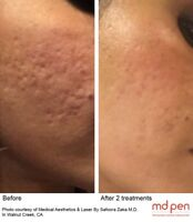 Microneedling acne scar removing treatment $175 reg $350'