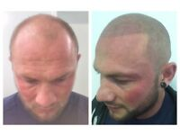 Scalp Micropigmentation - procedures and training available from one of the world's leading artists