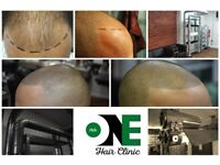 Mens Hair Loss Treatment, Non Surgical Micropigmentation, regain your hairline, (Models Required)