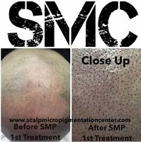 Scalp Micropigmentation For Men and Women With Hair Loss
