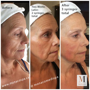 Cosmetic Injection Training Botox and Dermal Filler London Ontario image 6