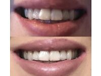 Teeth whitening spaces available today!!