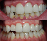 **CHEAP TEETH CLEANINGS FOR CHILDREN AND ADULTS**