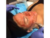 Dermapen Derma FNS fractional needling system