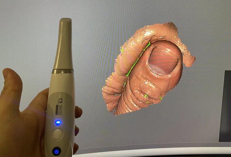 Carestream dental cs3600 intraoral dental scanner complete with software