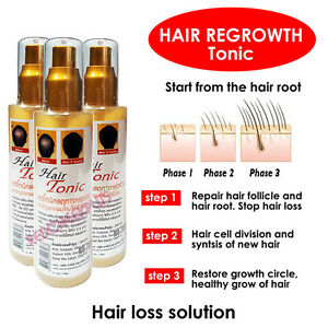 Hair Growth Tonic 90 ml Regrowth Bald Patch Thinning Spot