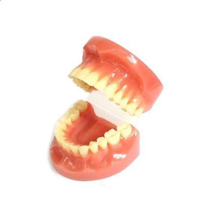 3m Unitek Teeth Model Patient Education Demonstration Orthodontic Brackets