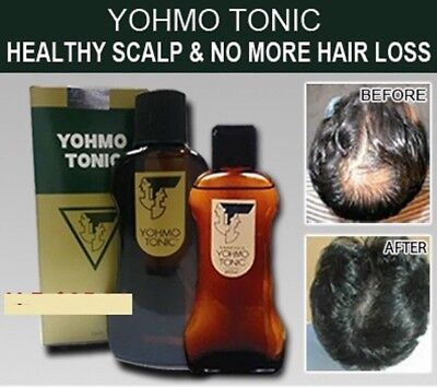 YOHMO TONIC 200ml--a hair tonic to be used external Japan Best selling HAIR
