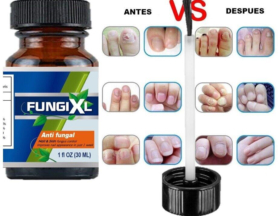 Anti Fungal Nail Treatment Liquid Toe Nail Finger Fungus Onychomycosis Thickened 4