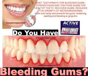 how to stop bleeding gums from a cut