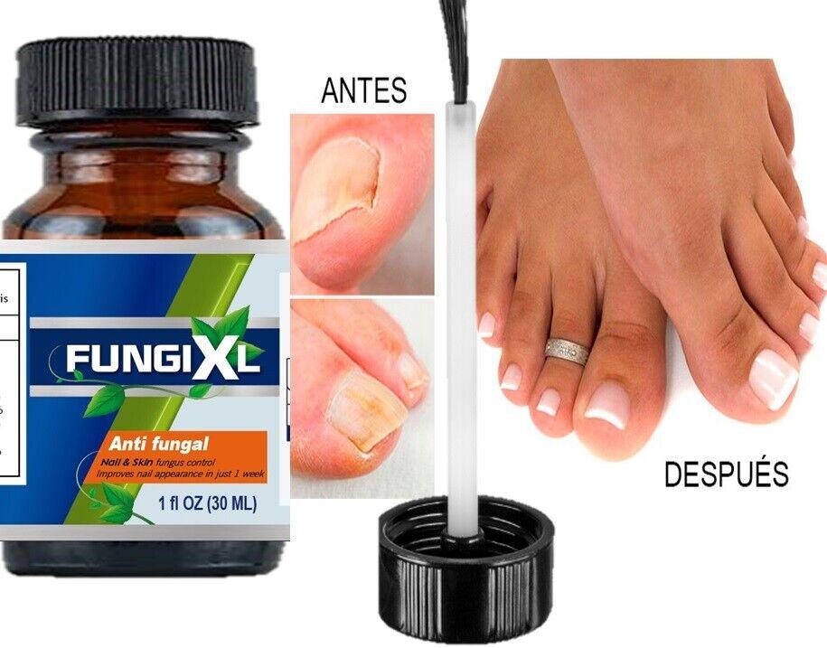 Anti Fungal Nail Treatment Liquid Toe Nail Finger Fungus Onychomycosis Thickened
