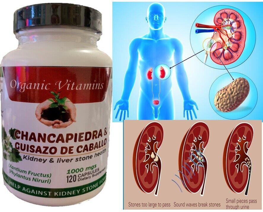 Guisazo de Caballo & Chanca Piedra 1000mg Potente 120 capsules Cure Riñones Pill 3