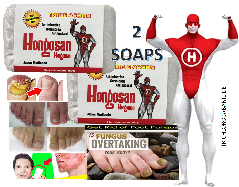 Antifungal Medicated Bar Soap Approved for Fungal Skin Infections defense body 1