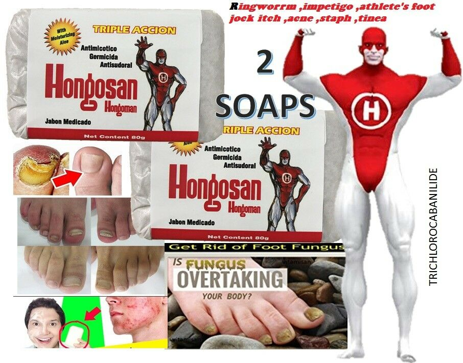 Antifungal Medicated Bar Soap Approved for Fungal Skin Infections defense body