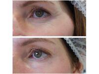 Semi Permanent Make up - Brows, eyeliner & lips, Facial & scar meso needling