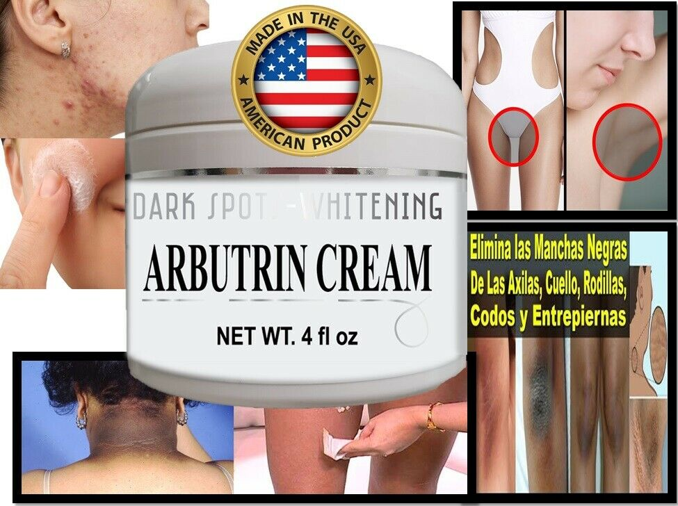 #1 mejor Crema Blanqueadora Aclaradora Para Manchas En La Cara Partes Intimas 4z