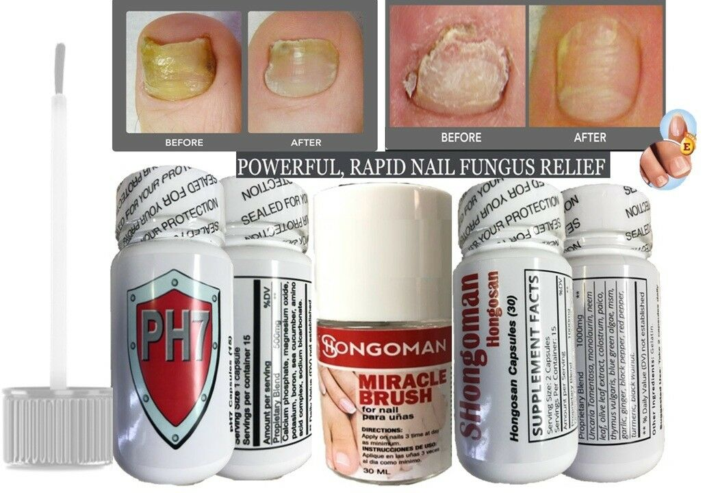 ZANA HONGOS ANTI FUNGAL NAIL Uñas + capsules relief hongo unas pies hongos quick 1
