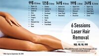 6 sessions laser hair removal for 99$ **limited time offer **
