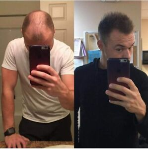 Is your hair thinning?  Try Monat!