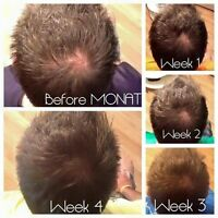 Are you experiencing hair loss or want longer, thicker hair?