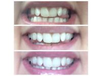 Excited to announce that I'm now selling this NON PEROXIDE, non abrasive whitening toothpaste