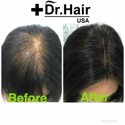 Dr.Hair USA Hair Building Fibers.THE BEST HAIR FIBER.LOOK 10 YRS YOUNGER IN