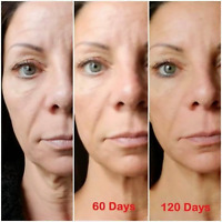 WHAT WOULD YOU SAY TO BETTER SKIN IN 30 DAYS?