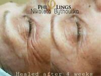 Face treatment - alternative to botox & Fibroblast
